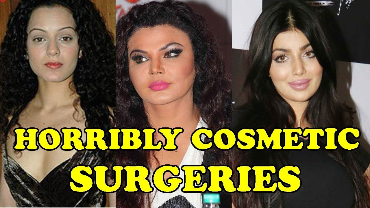 bollywood actresses who looks horribly in plastic surgeries