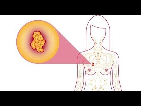 [Video] Breast cancer is a cancer that forms in the cells of the breasts..
