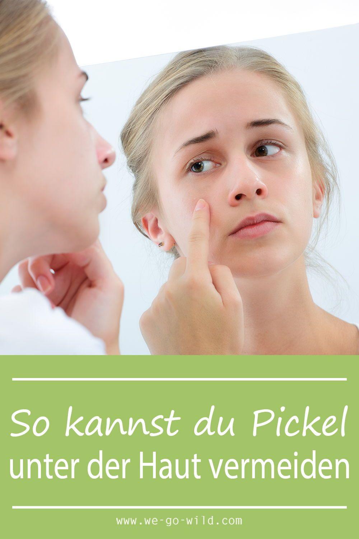 Pickel unter der Haut - So wirst du unterirdische Pickel