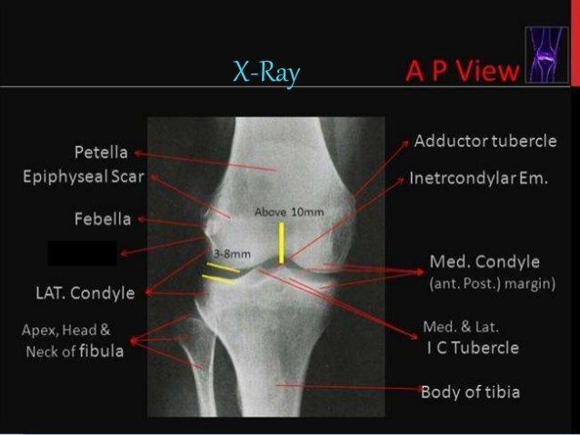 Image result for knee joint mri anatomy usmle pinterest image result for knee joint mri anatomy ccuart Choice Image