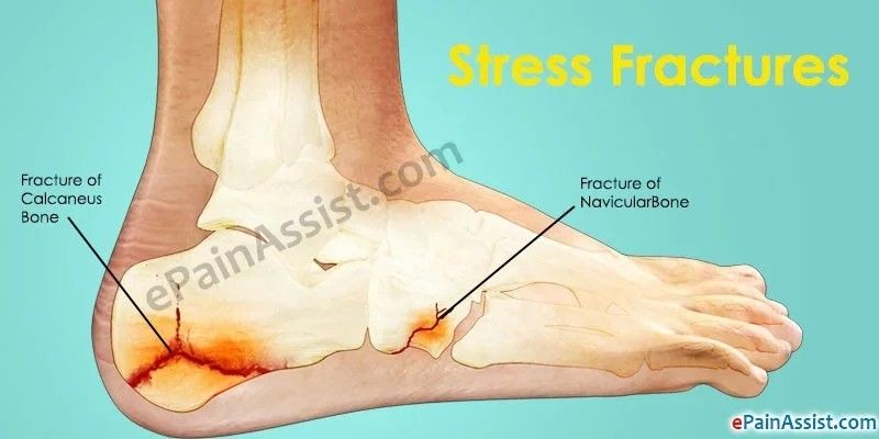 how to fix a fractured tibia and fixia