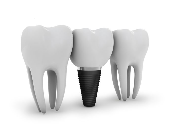 You Ask We Answer What Are Hybrid Implant Dentures And How Do They Work Teeth Implants Dental Implants Cost Dental Implant Procedure