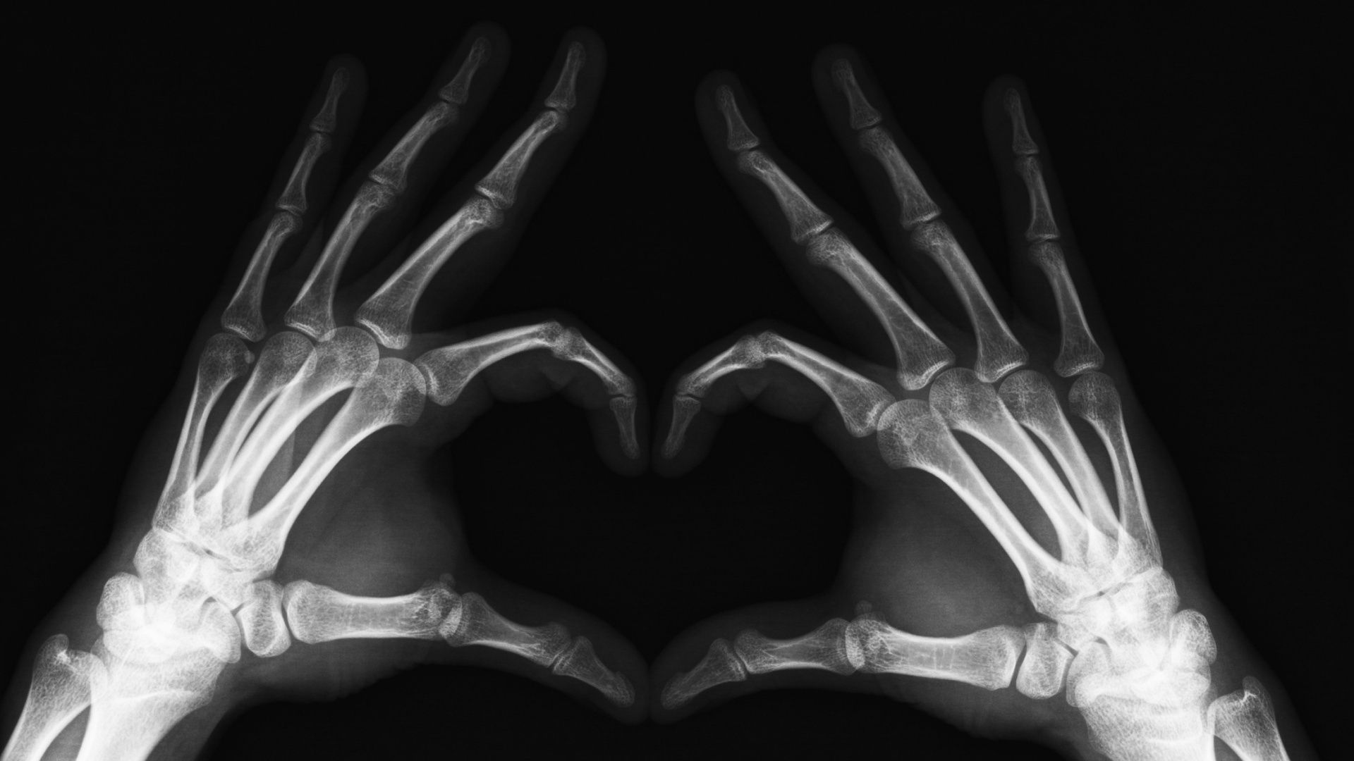 Funny Xray Tech Memes : Xray radiology radiologyhumor radtech xraytech aidet memes
