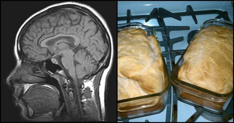 10 τροφές που μειώνουν τις πιθανότητες εμφάνισης Αλτσχάιμερ  #Υγεία