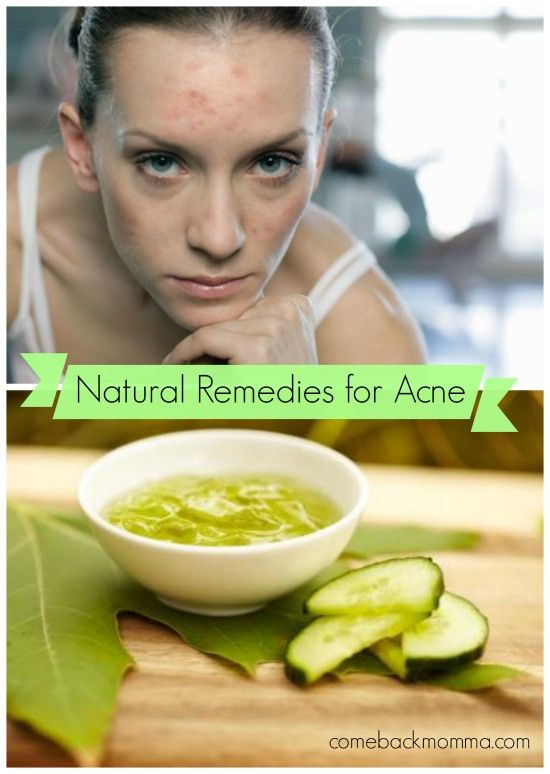 Natural Remedies for Acne - Comeback Momma #acne #natural #skincare