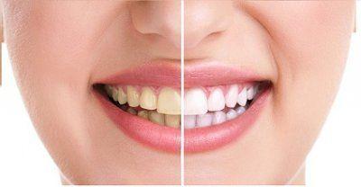 Cara Memutihkan Gigi Kuning Dengan Bahan Alami Health Pinterest