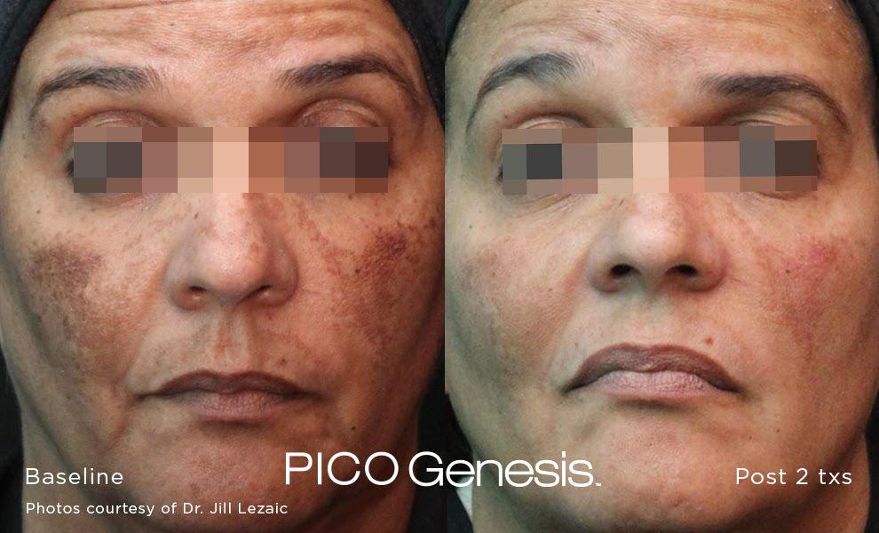 Pico Genesis Before After Skin Care Dark Spots Skin Care Benefits Skin Care Pimples