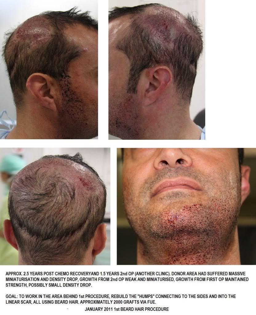 By far the best repair hair transplant on Bald Gossip