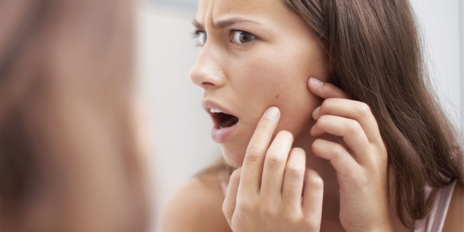 Treat and prevent these painful underground pimples uaka cystic acne
