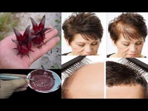 لن تصدقوا هذه الزهرة لانبات الشعر بين الفراغات ومعالجة الصلع وتساقط الشعر في 7 ايام أصبحت في منزلكم Accounting