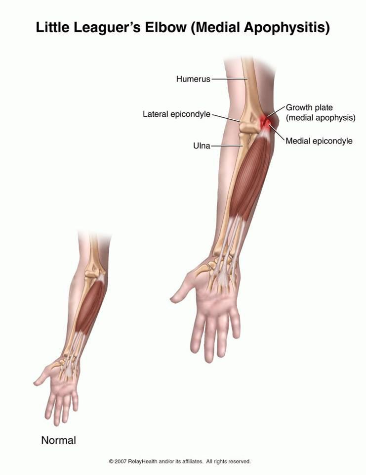 The Elbow Joint Humerus And The Ulna The Bony Bumps At The End Of