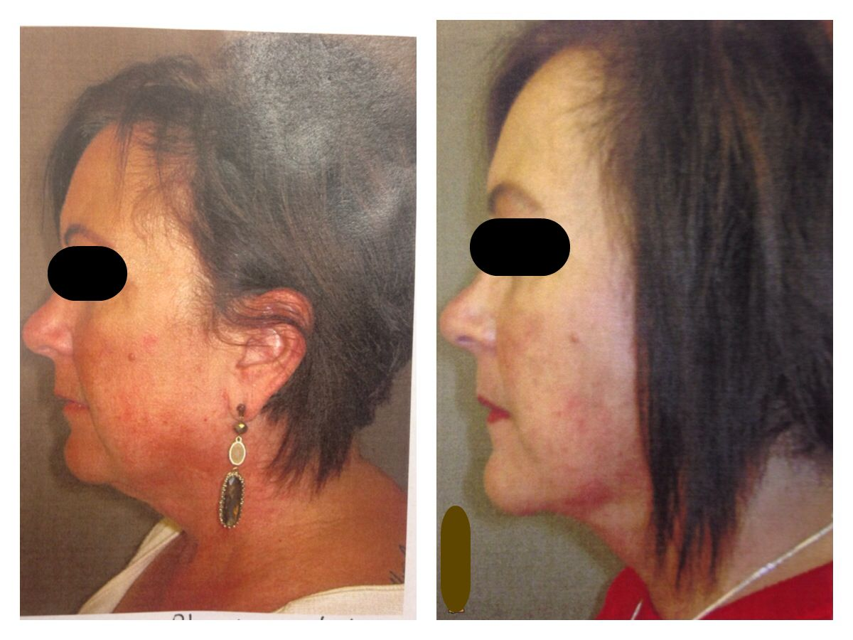 Beverly Hills Lift And Firm Cream Reviews - Mini neck and face lift with dr justin yovino ideal face and body of beverly