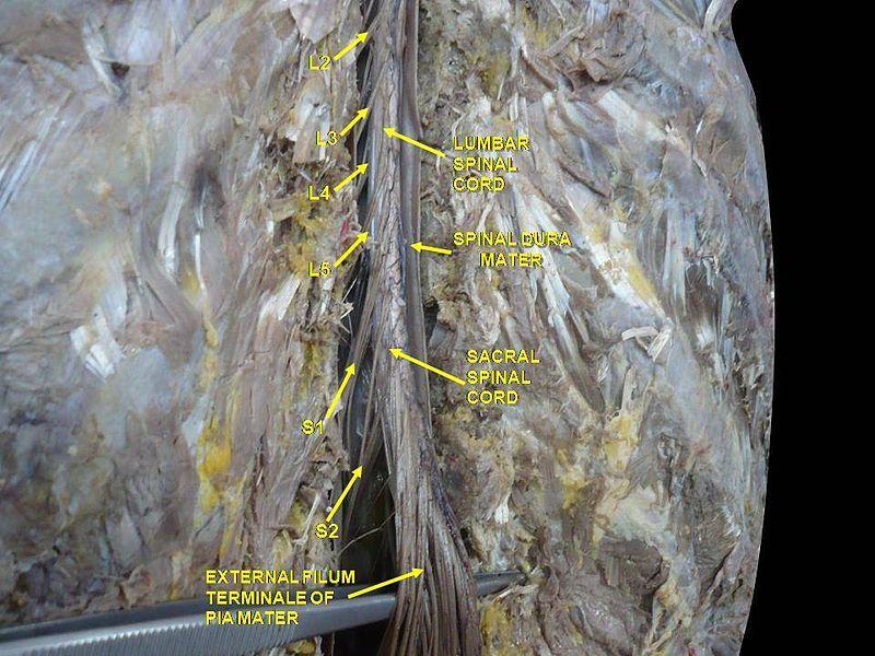 Filum Terminale Nerve Fiber Dura Mater Spinal Nerve Meaning of filum terminale medical term. nerve fiber dura mater spinal nerve