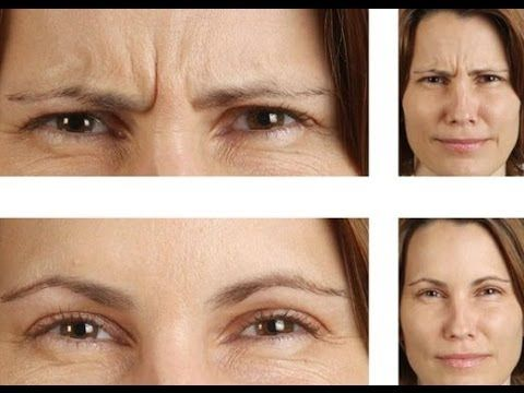 Image result for Eyebrows and wrinkles between eyes
