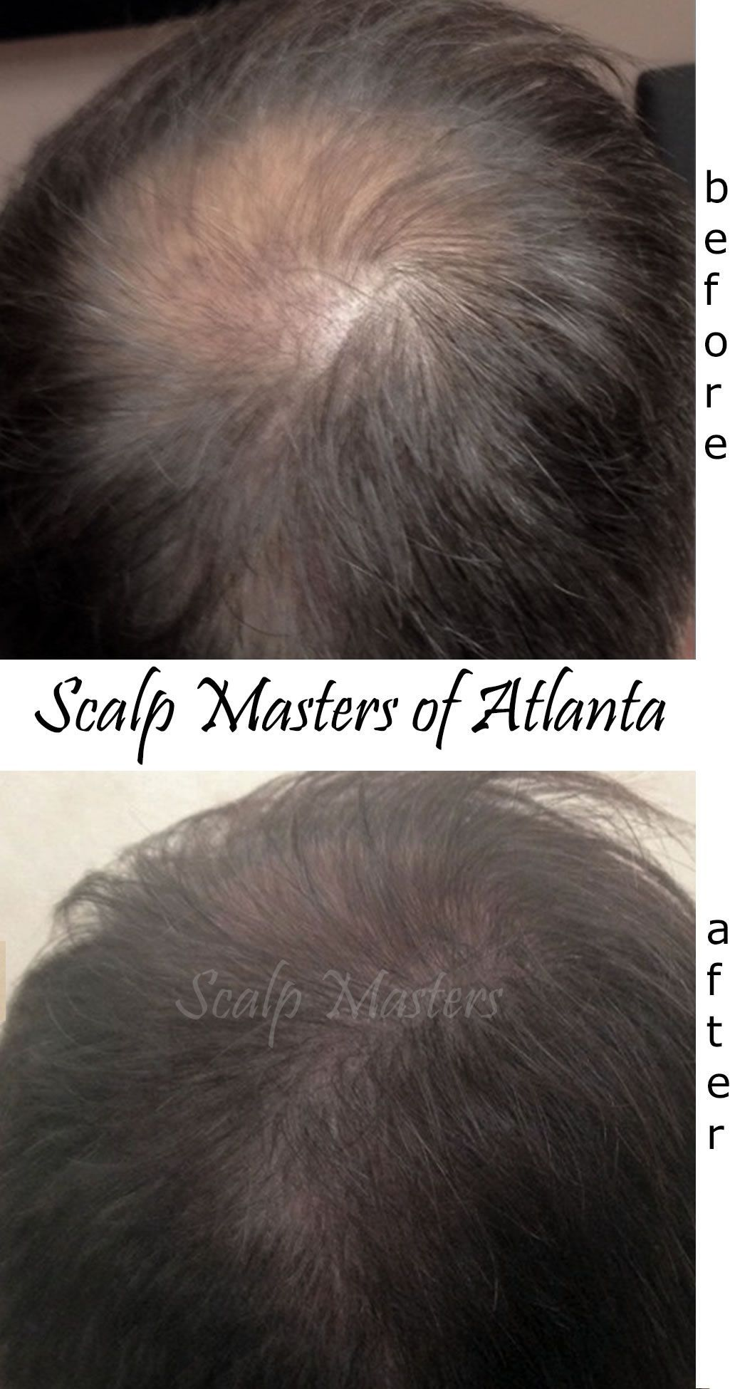 Atlanta crown balding solutions MalePatternBaldness  Male Pattern