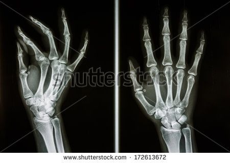 Hand bones holding google zoeken 3 pinterest hand bone film x ray show bones of human hands buy this stock photo on shutterstock find other images ccuart Choice Image