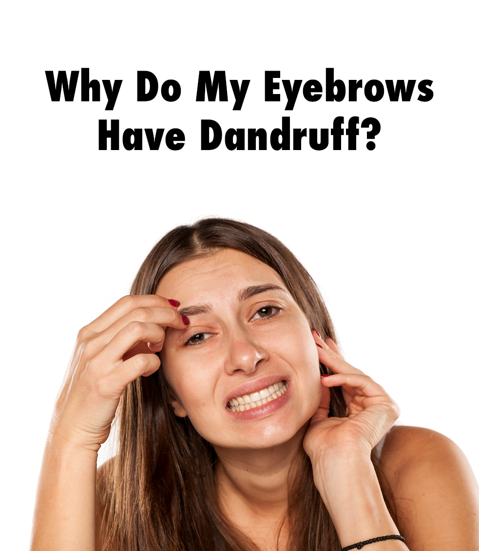 Why Do My Eyebrows Have Dandruff Our Blog Pinterest Dandruff