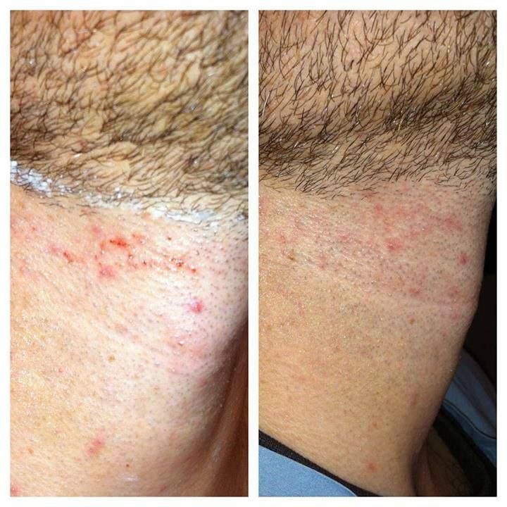 Back of neck after shaving and using soothe