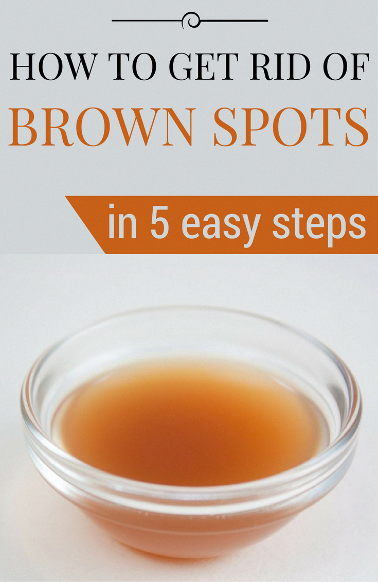 Tips on how to Get rid of Brown Spots on Face Normally #Fitness #WhatCausesBrownSpots