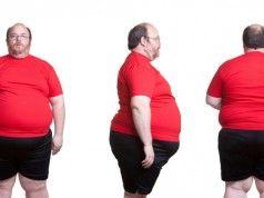 ¿Sabías Que Existen 6 Tipos De Personas Con Obesidad? Aquí Te Explicamos…