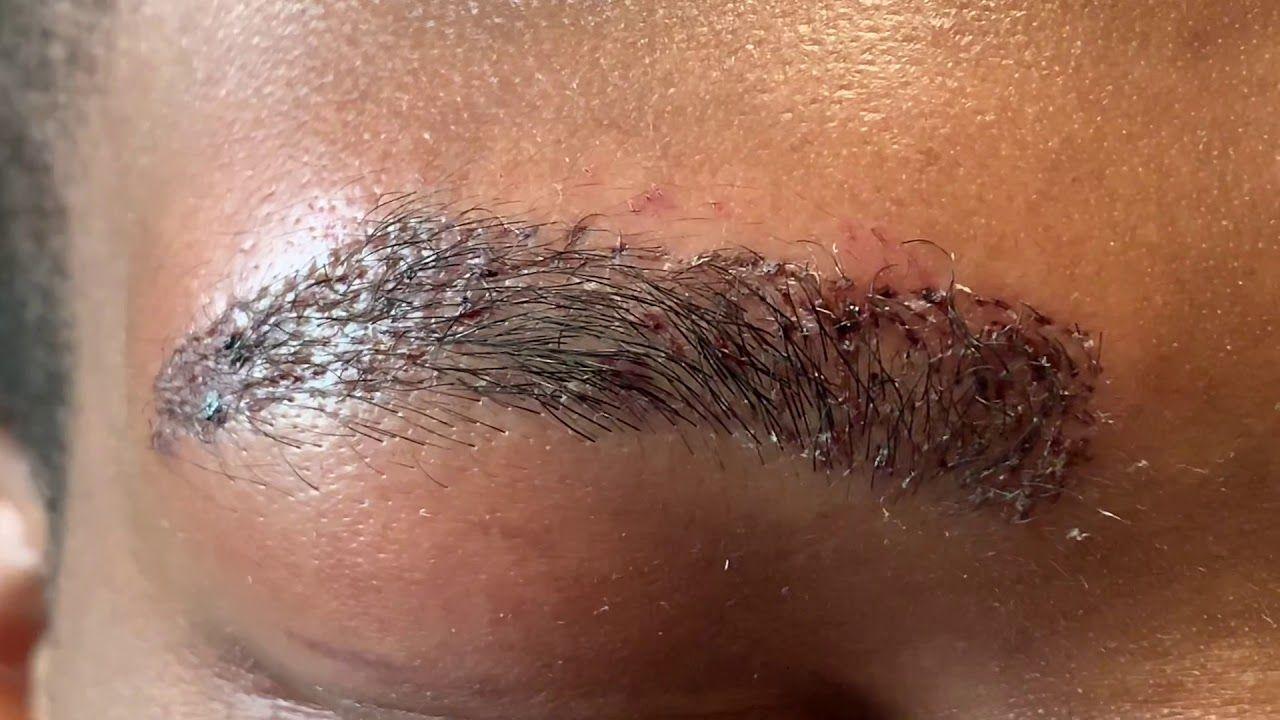 AfricanAmerican Male Eyebrow Hair Transplant Closeup 1