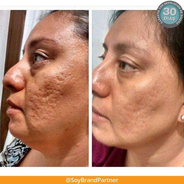 Reduce el aspecto de #arrugas #manchas y #cicatrices en la #piel con los ingredientes exclusivos de la #cremadenoche #Nerium  Pruébala sin riesgo por 30 días. PielJovenEn90Dias.com #pieljoven #acne #poros