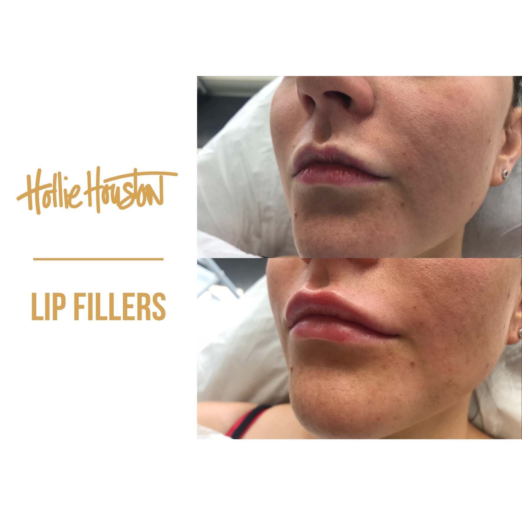 8e0c21d1fb6746c4207bacdf899de662 - How To Get Swelling To Go Down On Lip
