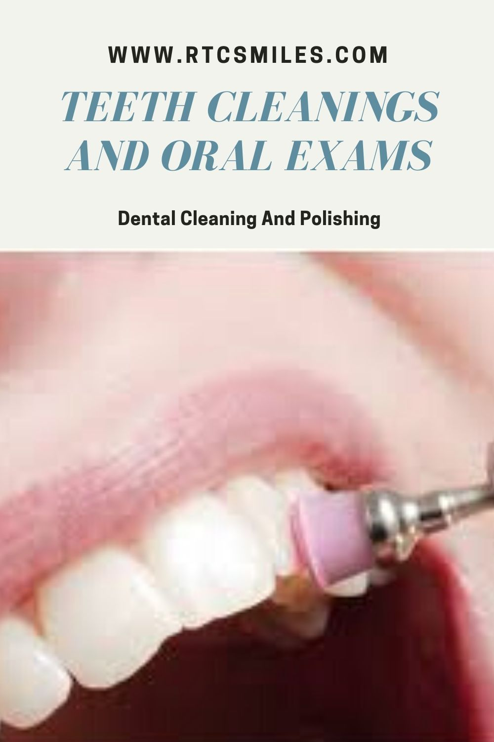 Dental Cleaning And Polishing in 2020 Dental cleaning