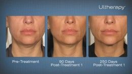 Ulthera Ultherapy In Ny Neck And Face Lift Without Surgery Ulthera In New York Is The Latest Co Ultherapy Ultherapy Before And After Laser Skin Tightening