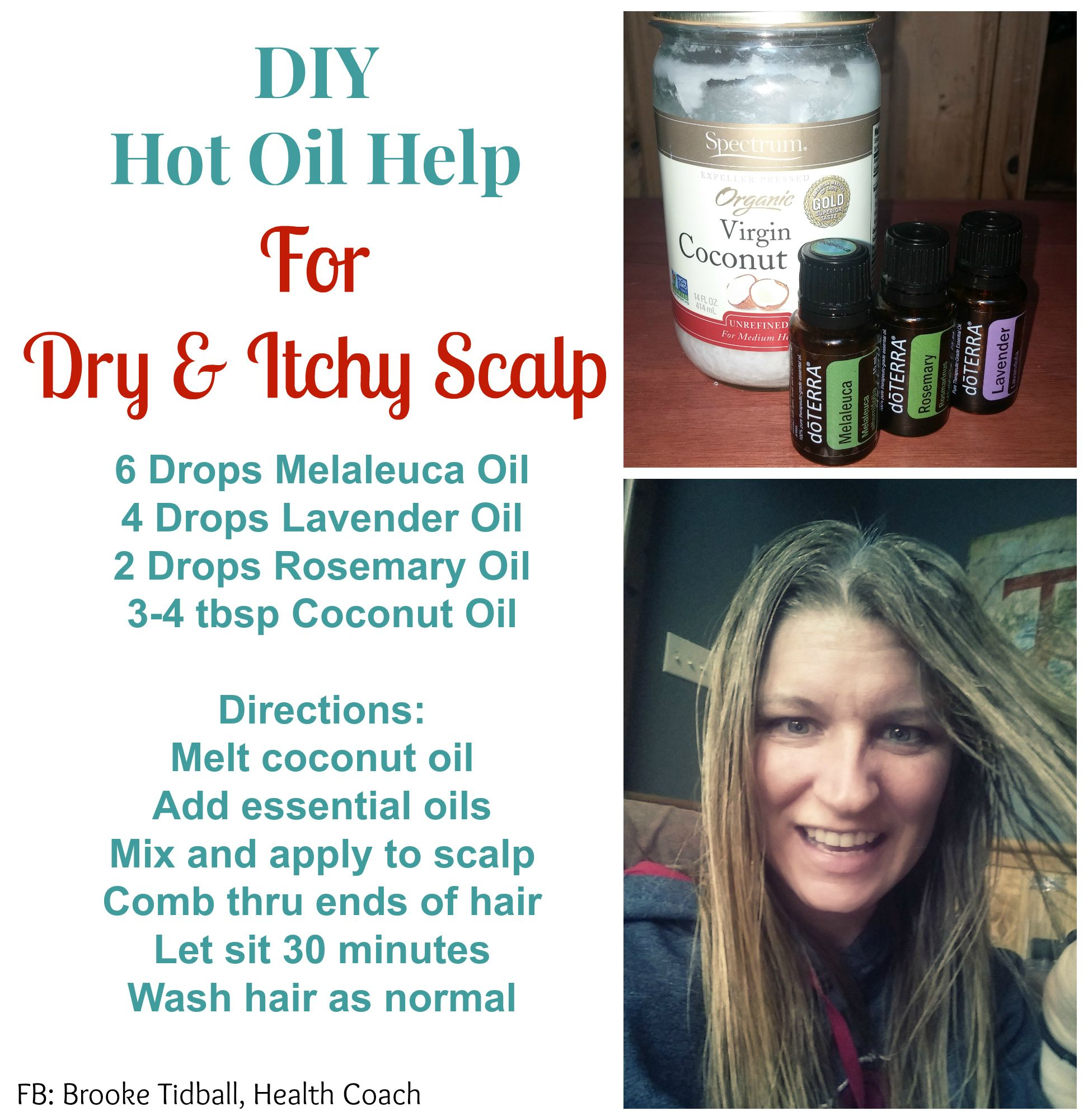Simple Tips Hot Oil Help For Dry Itchy Scalp Oil Treatments Scalp Oil Treatment Dry Scalp Treatment
