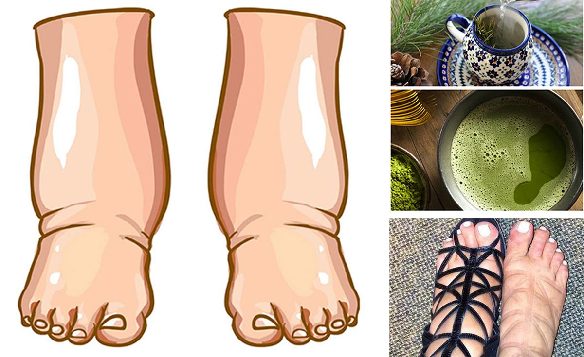 The Most Effective Remedy For Swollen Feet (With images