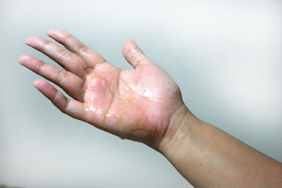 Get Tree Sap Off Your Hands Tips Hands Hand Sanitizer