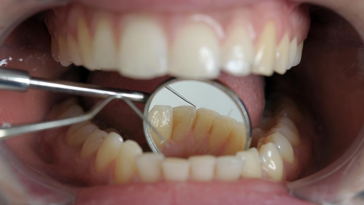 Mundgesundheit in Deutschland: Zähne werden viel besser gepflegt