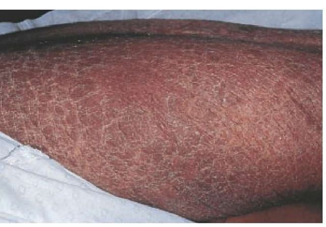 This patient developed marked scaling (acquired ichthyosis ...