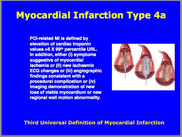 Third universal definition of Myocardial Infarction Type