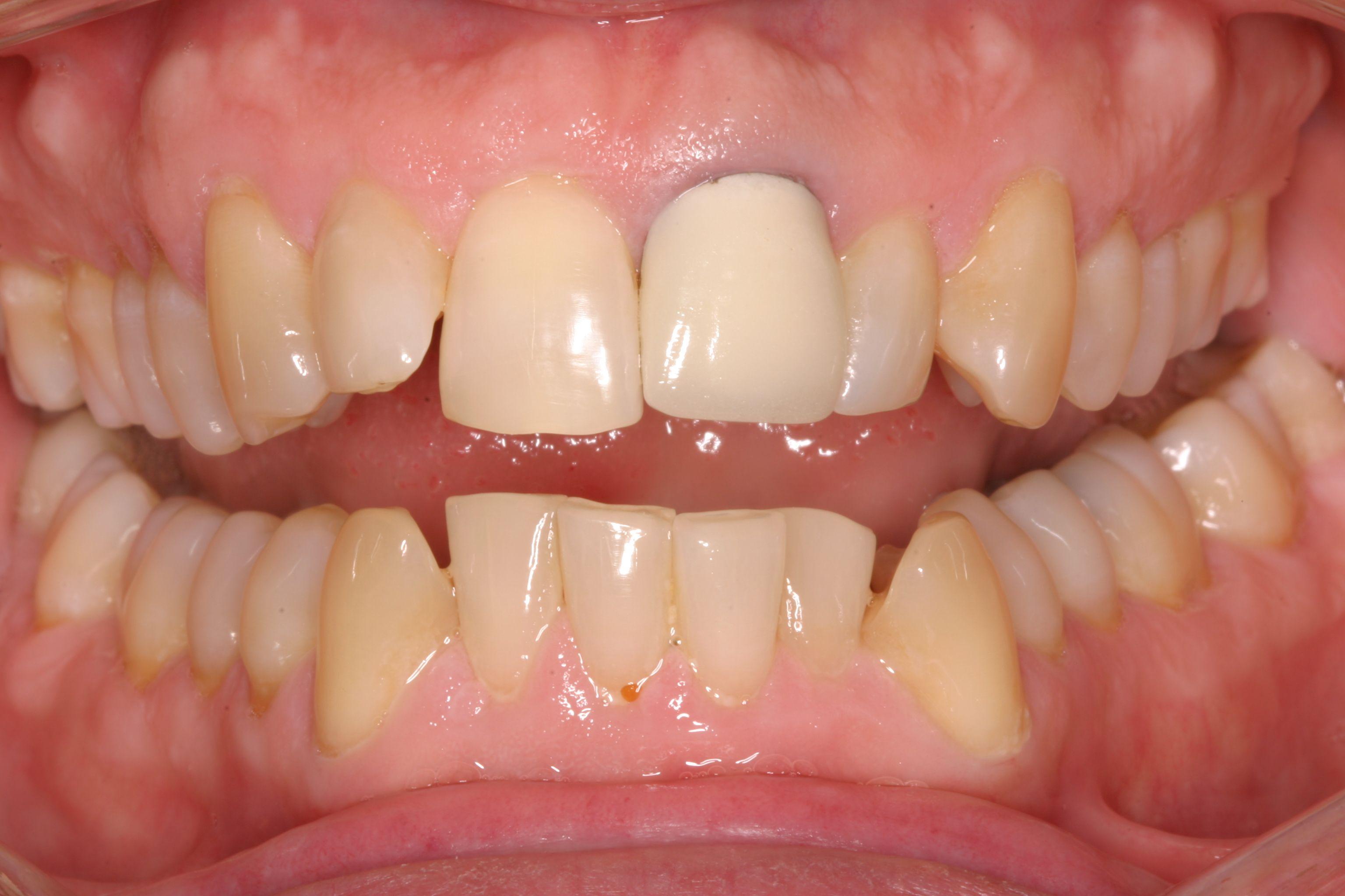 Metal Ceramic Crowns Placed On Anterior Teeth Can Appear Dark Around The Crown Margin This Is The Metal Cap Showing Thr Teeth Remedies Porcelain Crowns Dental