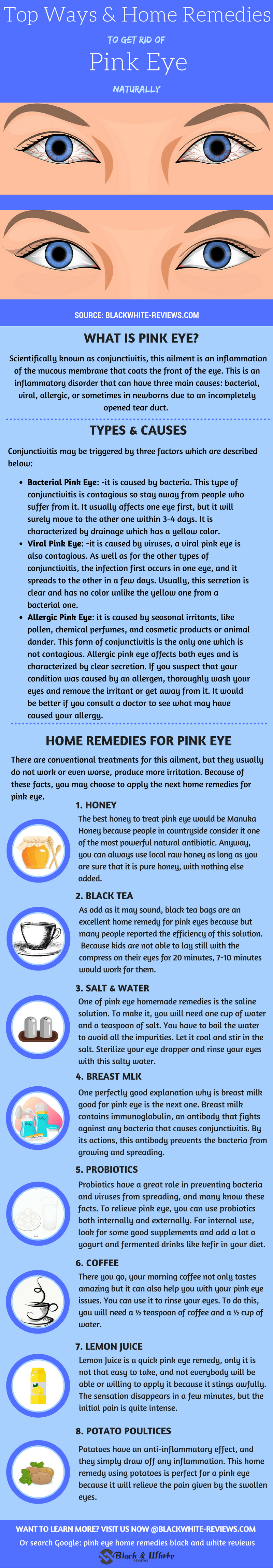 How To Get Rid Of Pink Eye-10 Home Remedies To Treat It -9610