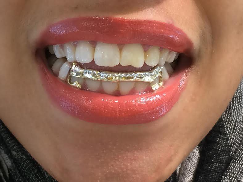 grill teeth women - Google zoeken  4c785b3fa7