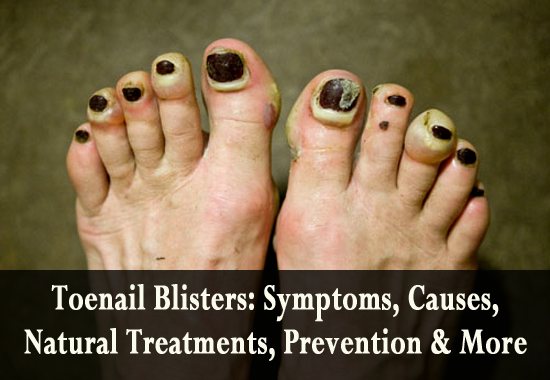 Toenail Blisters Symptoms, Causes, Natural Treatments