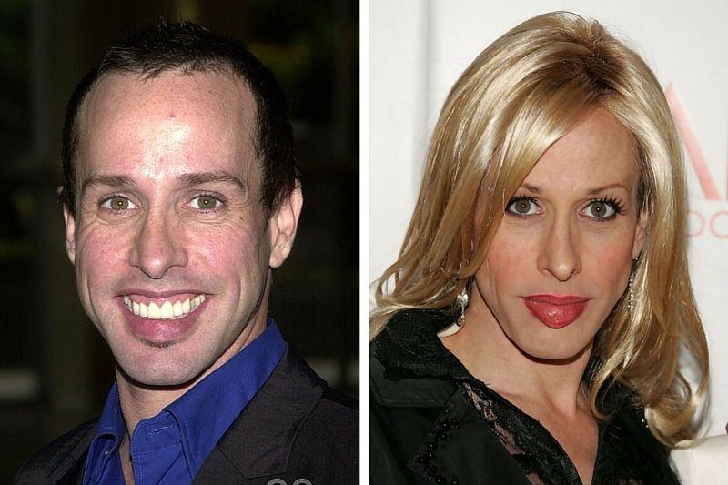 Celebrity and after before transgender 70 Celebrities