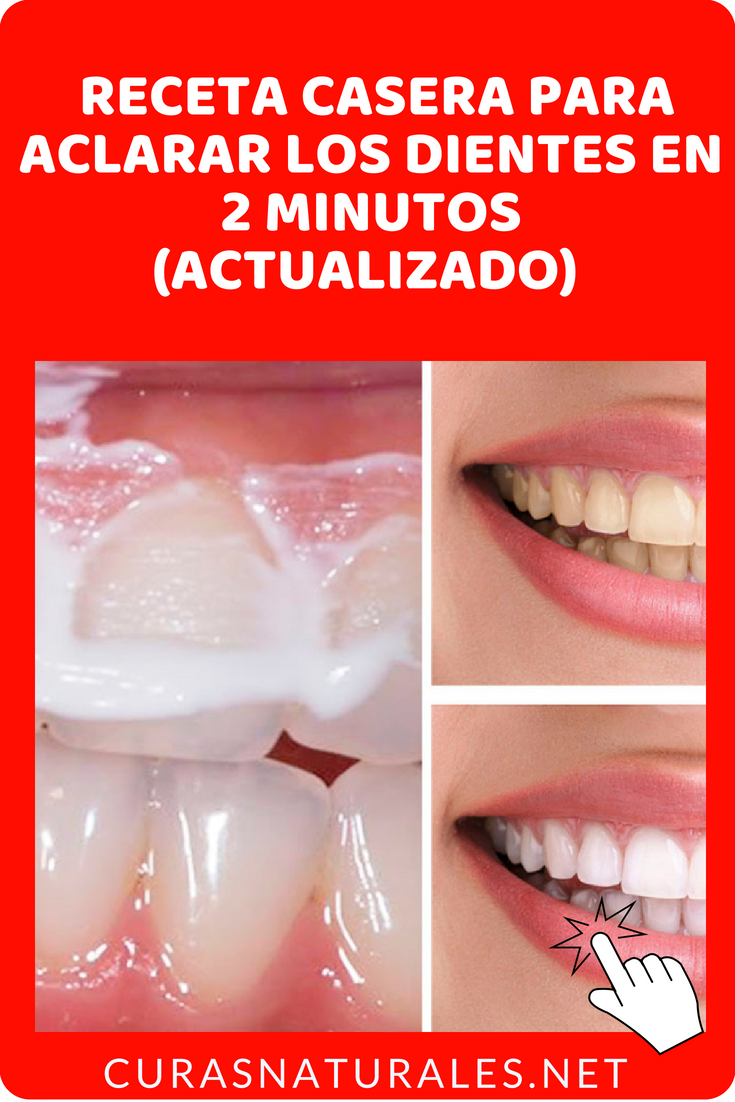 online here casual shoes good texture Cómo blanquear los dientes en casa ? Aprende estas 4 maneras ...