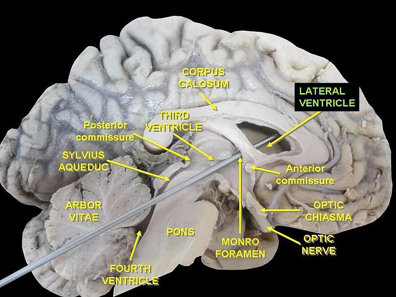 Slide11qq - Lateral ventricles - Wikipedia | anatomy | Pinterest ...