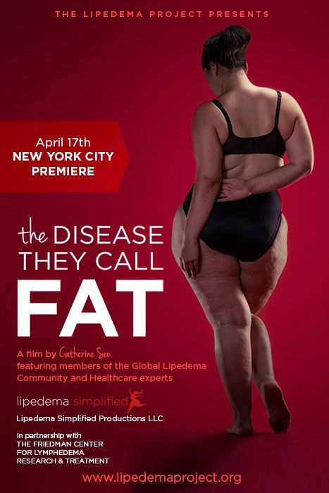 lipedema documentary poster | Healthy Me | Thunder thighs