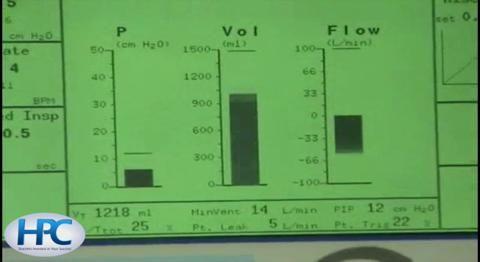 Noninvasive Positive Pressure Ventilation (NIPPV) Using Bilevel Positive Airway Pressure