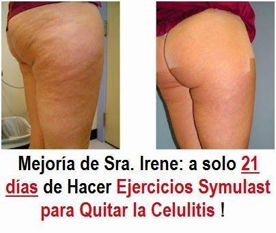 Imagenes de celulitis infecciosa en piernas
