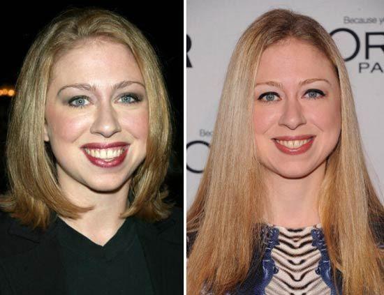 Chelsea Clinton Facial Surgery