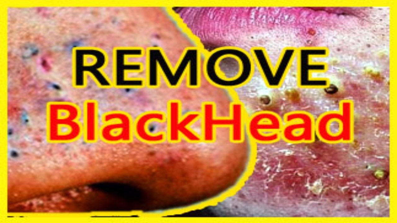 How To Remove Pimples Overnight | Acne Treatment 2017