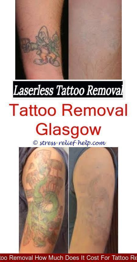 home tattoo removal how many sessions to remove wrist ...