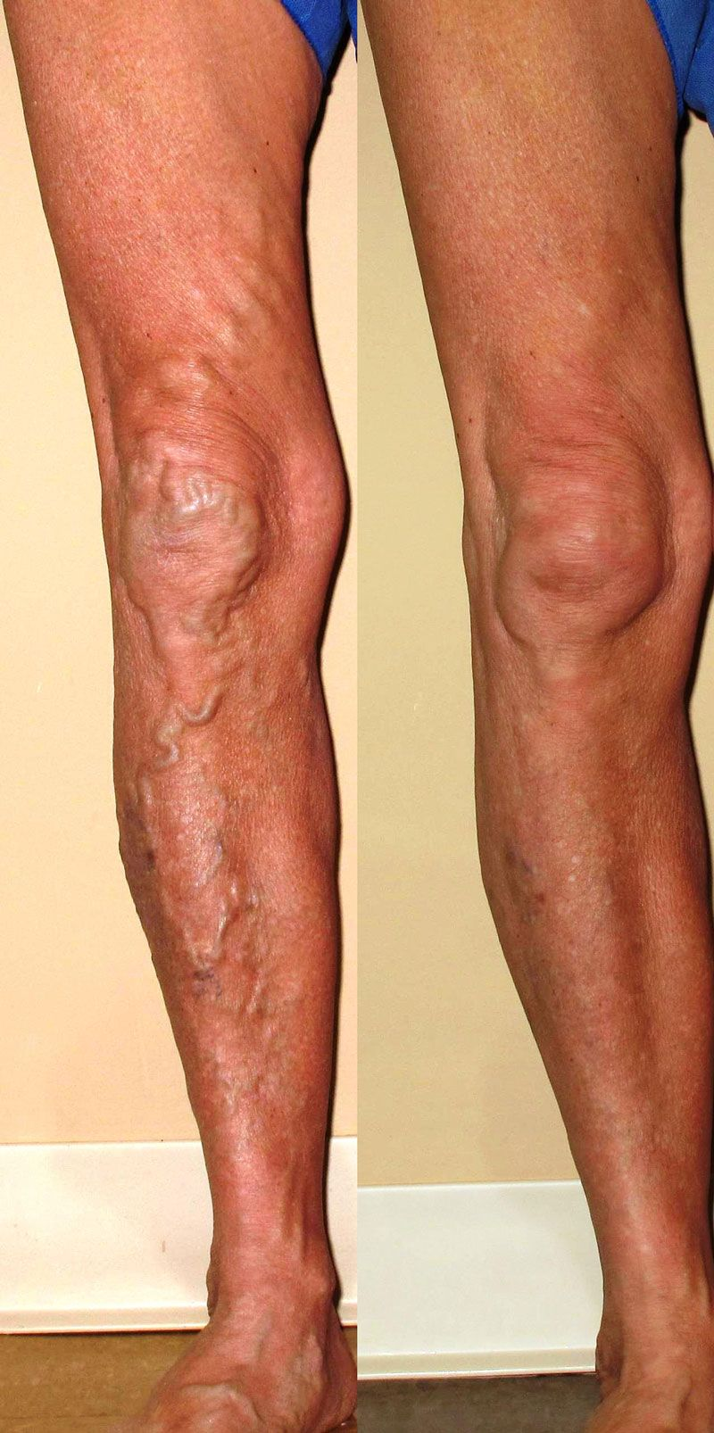 Before & After Varicose Veins | Varicose veins, Varicose ...