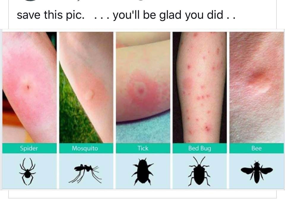 How To Identify Insect Bites Follow Us For More Hacks Insectbites Bedbug Bedbuginspection Tick Mosqui Identifying Bug Bites Bug Bites Insect Bites